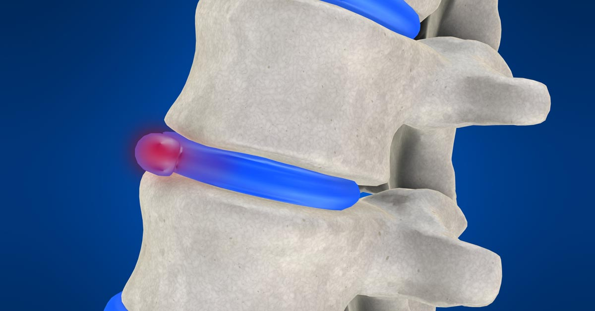 Yakima non-surgical disc herniation treatment